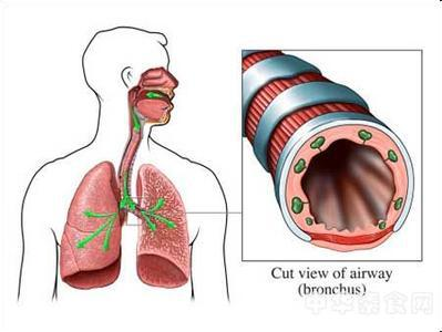支气管扩张有哪些危害