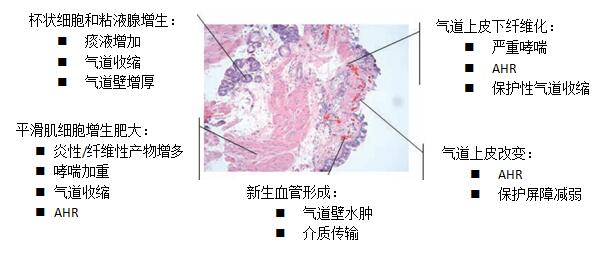支气管扩张的发病原因